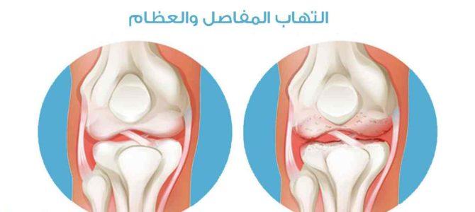 التهاب المفاصل، علاجه والوقاية منه