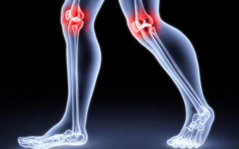 Qu'est-ce que l'arthrite et comment la traiter?