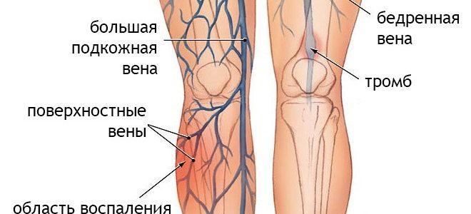 التهاب الأوردة و احمرار الجلد