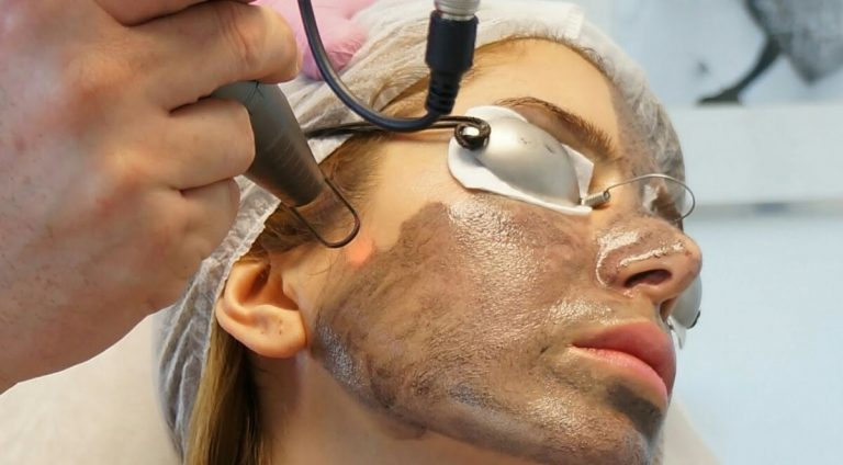 Медицинский копирайтинг: карбоновый пилинг лазером – чистка и омоложение кожи