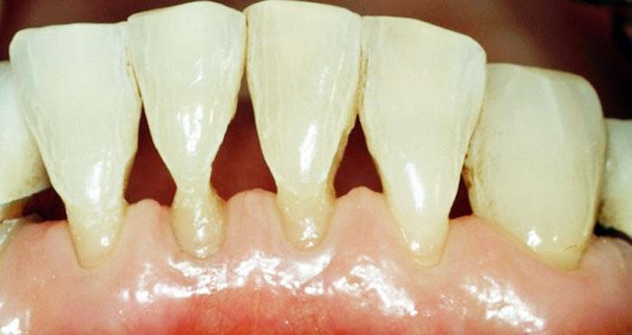 Оголение шеек зубов